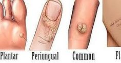 HOMEOPATHY FOR WARTS                  WARTS        Introduction    HPVs (Human pappilloma virus) can infect and cause d...