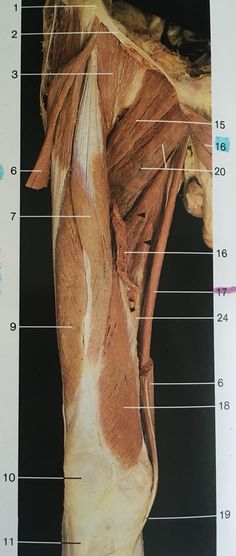 Right side and ventral aspect of thigh muscles after removing sartorius and adductor longus femoris, lateralis, brevis, vastus medialis. Muscular System, Thigh Muscles, Muscle Body, Free Education, Yin Yoga, Human Anatomy, Occupational Therapy, Fill, Gym