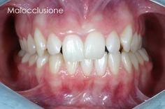 SDB Studio Dentistico Balestro: Malocclusione di classe 2/2