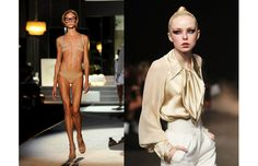 Anorexia Pictures Models | ... Models in an Effort to Fight the Eating Disorders Anorexia and Bulimia