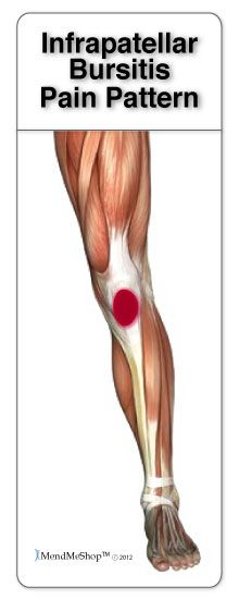 29 Best Bursitis Of The Hip Knee Shoulder And Elbow Images On