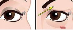 Povislá víčka umí být skutečně nepříjemné, make-up kvůli ním na pokožce vypadá neatraktivní a zbytečně přidávají člověku na věku. Obecně jsou povislá víčka přirozeným důsledkem stárnutí, ale mohou být způsobeny také poraněním v této oblasti, poškozením nervů nebo jiným onemocněním. Jedním z ne