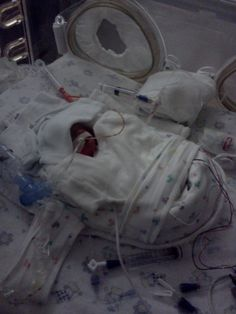 Touching Story. EVERYONE should pin this since we will ALL know someone at some point in our lives that has a baby in the NICU. How to give support, and what NOT to say.