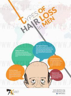 Types of Hair loss in Men