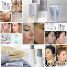 Are you or your family members suffering from acne? Clear Action is a comprehensive Acne treatment system that addr. Acne Treatment, Clear Skin, How To Remove, Action, Beauty, Beleza, Group Action, Acne Remedies, Cosmetology