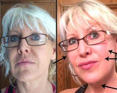 """Face Lifting Creams - these barely made the list because most creams don't do much actual """"lifting"""" - but a couple of them stand out for Face Lift Exercises, Facial Exercises, Eyelid Cream, Lower Face Lift, Face Lifting, Olay Regenerist, Dermal Fillers, Cream Tops, Plastic Surgery"""