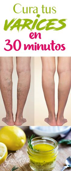 Braune Flecken am Bein síntomas de diabetes