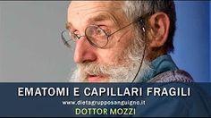 Dottor mozzi ematomi e capillari fragili