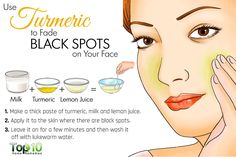Home Remedies to Get Rid of Dark Spots on Face turmeric for black spotsturmeric for black spots Black Spots On Face, Dark Spots, Face Scrub Homemade, Homemade Skin Care, Haut Routine, Anti Aging, Top 10 Home Remedies, Dark Spot Remedies, Skin Care Routine For 20s