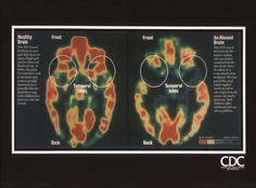 brain scans for Ptsd | ... child's brain on trauma; this is the life of that traumatized brain