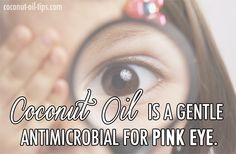 Coconut Oil Pink Eye Cure - Best Natural Remedy - Coconut Oil Tips