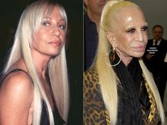 Donatella Versace Before and After Surgery Always interesting what you can find . Donatella Versace Before and After Surgery Always interesting what Bad Celebrity Plastic Surgery, Bad Plastic Surgeries, Plastic Surgery Gone Wrong, Plastic Surgery Photos, Celebrity Surgery, Donatella Versace, Gianni Versace, Dimple Surgery, Hollywood