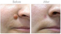 Skintologymd Skin Tag On Eyelid, Skin Tag Removal, Medical Science, Warts, Natural Solutions, Real People, Drugs, The Cure