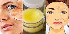 Powerful Multifunctional Homemade Cream Removes Deep Wrinkles From Your Face In Just 7 Days Face Mask For Blackheads, Wrinkle Remover, Prevent Wrinkles, Aging Cream, Homemade Skin Care, Tips Belleza, Anti Aging Skin Care, Good Skin, How To Remove