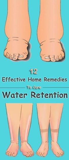 home-remedies-for-water-retention
