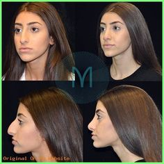 Rhinoplasty Before And After Nose Surgery, After Surgery, Orthognathic Surgery, Cheek Fillers, Rhinoplasty Before And After, Plastic Surgery, Nose Jobs, Change, Bridal