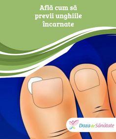 Află cum să previi unghiile #încarnate  Deși unghiile de la picioare sunt cele care tind să crească în carne, același lucru se poate #întâmpla și cu cele de la mâini. Este important să le tai corect pentru a #preveni problemele.