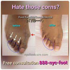 Corn removal surgery. Call us for a free consultation. 888-nyc-foot / nycfootcare.com #NYC #ouch #celebrity #cosmetic #toes #makeup #manhattan #bronx #brooklyn #queens #fashion #fashionista #heels...