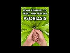 Home Remedies to Treat and Prevent Psoriasis Psoriasis Treatment Scalp Psoriasis Psoriasis Symptoms -  CLICK HERE for The No. 1 Itchy Scalp, Dandruff, Dry Flaky Sore Scalp, Scalp Psoriasis Book! #dandruff #scalp #psoriasis  - #Dandruff