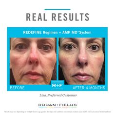 """""""I lost 25 pounds and a lot of the weight was in my cheeks. When I finally found my cheekbones, all of my skin was sagging. Rodan + Fields® was a face saver. These are amazing products."""" – R+F Preferred Customer, Lisa Giles. Message me today start your transformation today!"""