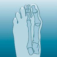 Recept na odstranění bolesti zad, kloubů, nohou.....