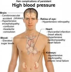 What are the symptoms of hypertension?