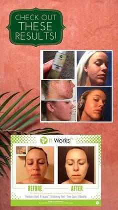 Exfoliating Peel, It Works, Facial, Facial Treatment, Facial Care, Face Care, Nailed It, Face