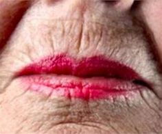 No Botox, No Needles! One Trick To Remove Lip Lines (Watch)