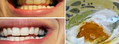 Creative Ideas - How To Whiten Your Teeth Using Turmeric - i Creative Ideas Creative Ideas - How To Whiten Your Teeth Using Turmeric - i Creative Ideas, Dental aceite de coco Coconut Oil For Teeth, Coconut Oil Pulling, Pasta Dental Casera, Turmeric Anti Inflammatory, Gum Disease Treatment, Oil Pulling Benefits, Homemade Toothpaste, Gum Health, Dental Health