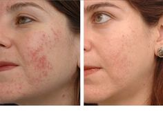 """Scarring tends to be genetically linked to an individual's unique inflammation response. Those people with a """"secondary inflammatory response"""" to trauma tend to scar, while those with a """"single inflammatory response"""" to trauma tend not to scar. This explains why some people will scar easily and others maintain a smooth complexion even through moderately severe battles with acne."""