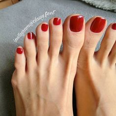 What Can I Expect With Hammertoe Surgery Foot