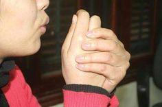 Cách nhận biết dấu hiệu của bệnh thận yếu meochuayeusinhly.com · Cần nhận biết sớm triệu chứng bệnh thận yếu. Một số dấu hiệu của bệnh thận yếu có thể phát hiện từ sớm như: Suy giảm ham muốn; rùng mình, đi tiểu nhiều,...