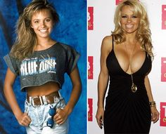 Pamela Anderson has had several boob jobs over the years, dramatically transforming her bust size. Recently, Pam has been accused of tweaking her face as well. Top Chart Fun - The Most Shocking Celebrity Plastic Surgery Transformations. Extreme Plastic Surgery, Bad Plastic Surgeries, Plastic Surgery Photos, Celebrity Plastic Surgery, Baywatch, Guinness, Pamela Andersen, Radar Online, Pam Pam
