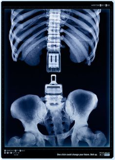 An example of shock advertising. This agency has created a PSA aimed at getting people to wear seat belts.. ................................................................................ http://www.juliusdesign.net/10334/shock-advertising-40-campagne-pubblicitare-creative/