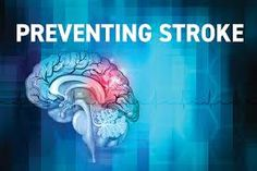 Global Transient Ischemic Attack Market 2020 Industry Development – (F. Hoffmann-La Roche AG, Danaher Corporation, Abbott La…More) Cardiogenic Shock, Broken Heart Syndrome, Types Of Strokes, Emergency Doctor, Loss Of Balance, Stroke Recovery, Reducing High Blood Pressure