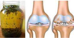 Può capitare, col tempo di avvertire dolore alle gambe, in particolare alle ginocchia, dolore intenso dovuto soprattutto all'usura delle stesse. In particolare, a consumarsi lentamente ed …