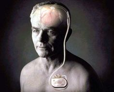 Hirnschrittmacher erleichtert Leben mit Parkinson - derStandard.at