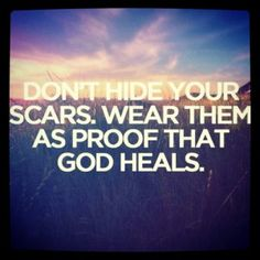 I've tried so hard my entire life to hide my scars because that is just how I was raised. I have decided to turn over a new leaf, wear my scars with pride, and begin the healing process.