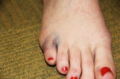 How to care for #BrokenToes as an #athlete. | http://richardsonpodiatrycenter.com