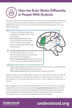 What does reading do to your brain? Use this graphic to learn how reading affects the brain—and how dyslexia and intensive reading instruction affect the brains of struggling readers. Dyslexia Activities, Dyslexia Strategies, Dyslexia Teaching, Learning Disabilities, Reading Strategies, Reading Skills, Multiple Disabilities, Teaching Biology, Brain Activities