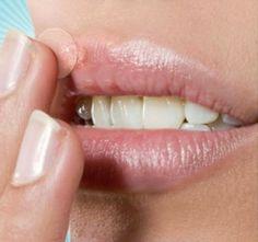 Três receitas naturais contra herpes | Cura pela Natureza.com.br