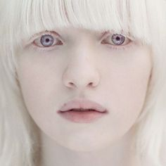 Axis Layla Fey - A natural albino, has difficulty seeing in bright light and is easily sunburned.