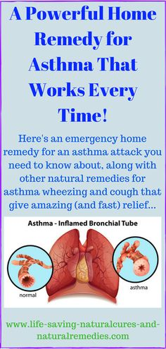 Here's an emergency home remedy for an asthma attack you need to know about, along with other natural treatments and remedies for asthma wheezing and cough that give amazing (and fast) relief. Home Remedies For Asthma, Natural Asthma Remedies, Holistic Remedies, Natural Cures, Herbal Remedies, Natural Healing, Natural Oil, Natural Foods, Natural Antibiotics