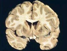 Una investigación relaciona las diferencias individuales en la manera de crear nuestros recuerdos con la microestructura cerebral. Según el trabajo, las diferencias individuales en la recuperación de la memoria verdadera y la falsa podrían estar relacionadas con las diferencias en la organización de la sustancia blanca del cerebro.
