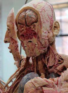 Corte frontal