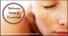 Melasma Natural Treatment That Have Been Proven To Work