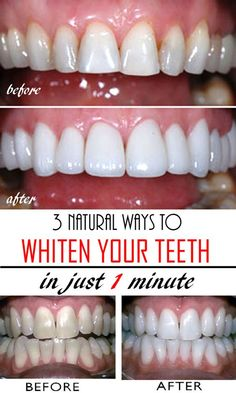 3 natural & homemade solutions to get whiter teeth in just a few minutes! Read this tutorial and get rid of yellow teeth forever!