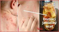 Vědecké studie dokazují, že jablečný ocet umí dokonale léčit ekzémy, i nejrůznější jiné špatné kožní projevy. Ocet má hodně prospěšných vlastností využitelných při léčbě ekzémů: - Jablečný ocet obsahuje beta-karoten, který podporuje obnovu   buněk. - Ocet je bohatým zdrojem draslíku, který