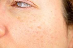 Treatment For Vitiligo Topically-Natural Treatment For Vitiligo On Lips Age Spot Treatment, Liver Spot, Vitiligo Treatment, Skin Grafting, Spots On Face, Skin Spots, Remover, Dark Spots, Tips