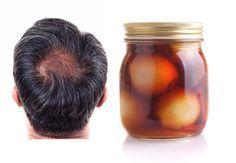 Traitement incroyable contre la perte de cheveux et les pellicules. Il nettoie le cuir chevelu et renforce les cheveux en quelques semaines!